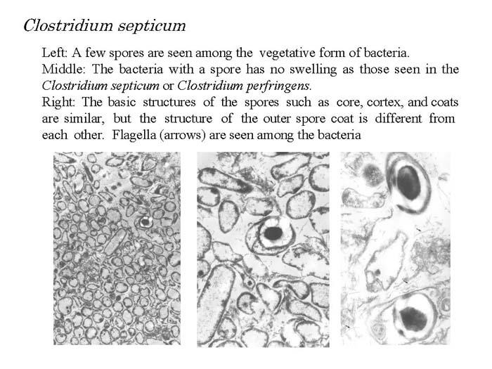 Niah Niah Pathogenic Organisms Observed By Electron